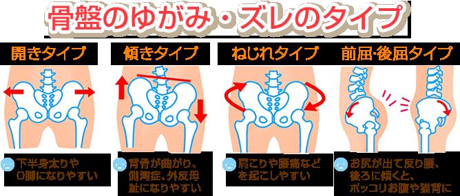 骨盤の歪み・ずれのタイプ